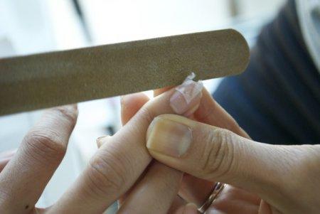 Что делать со сломанным ногтем
