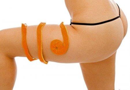 Как избавиться от апельсиновой корки на бедрах