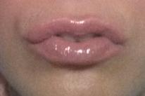 Блеск для губ c коллагеном starlette