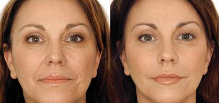 Применение микротоковой терапии в косметологии