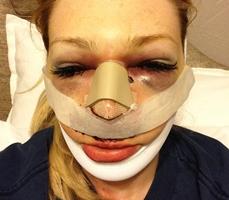 Коррекция формы носа – отзывы после операции ринопластики